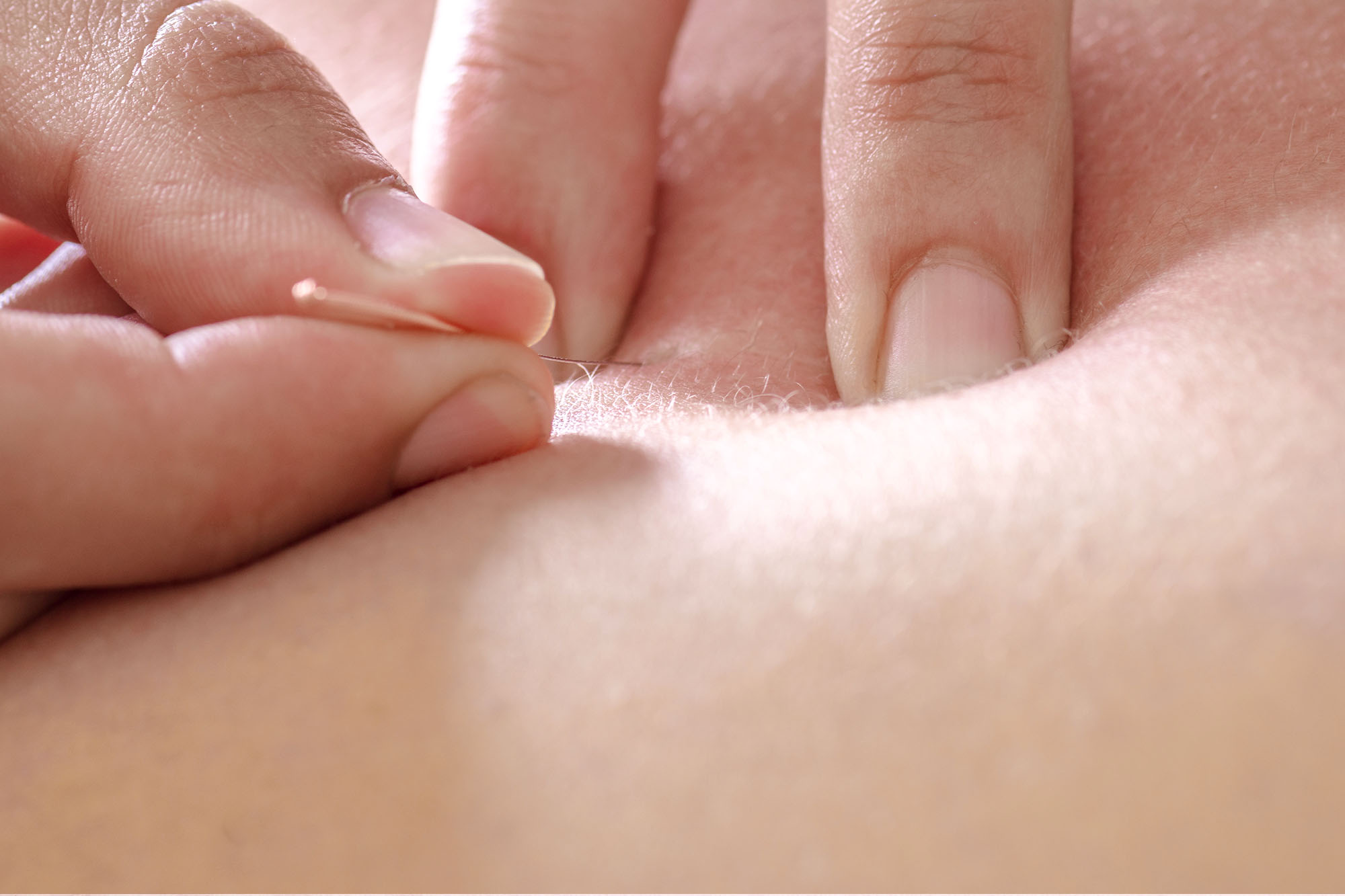 Osteopathy dry needling acupuncture